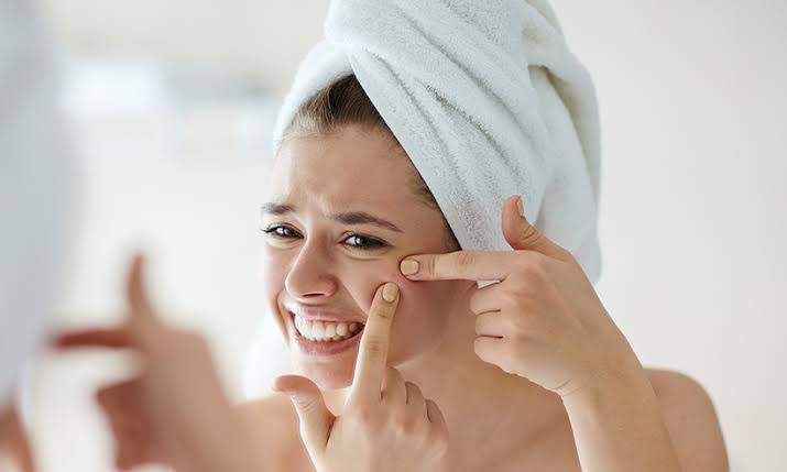 How to treat acne