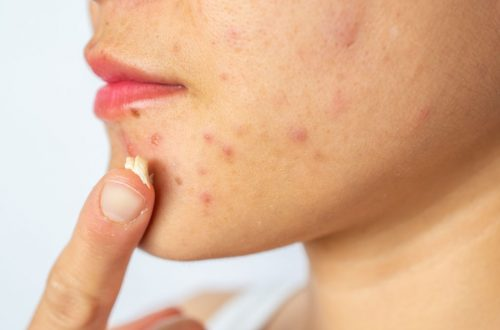 Conceptual of acne problems on woman skin.